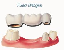 Fixed Bridges